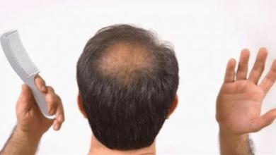 Photo of نقص الفيتامينات الأبرز.. 10 أسباب غير متوقعة لـ تساقط الشعر