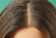 Photo of وصفات للقضاء على قشرة الرأس