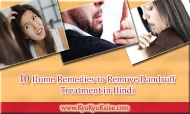 Baalo se Dandruff (russi) Hatane ke Gharelu Upay, Dandruff Treatment in Hindi