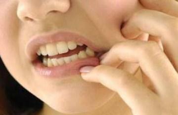 मुंह के छाले की दवा का नाम, Muh ke chale ki dawa in hindi