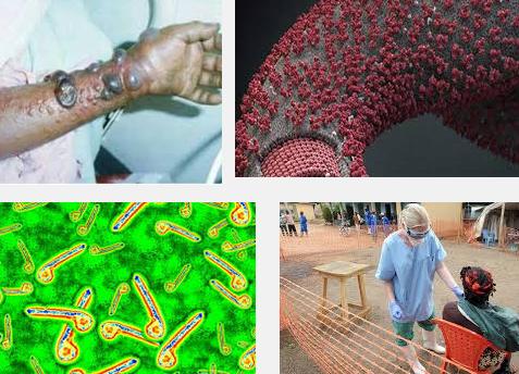 gejala awal virus ebola