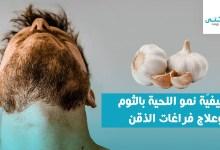 كيفية نمو اللحية بالثوم وعلاج فراغات الذقن