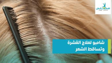 صورة أفضل شامبو لعلاج القشرة وتساقط الشعر نهائياً