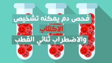 فحص دم يمكنه تشخيص الاكتئاب والاضطراب ثنائي القطب