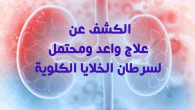 علاج واعد ومحتمل لسرطان الخلايا الكلوية