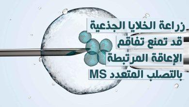 زراعة الخلايا الجذعية قد تمنع تفاقم الإعاقة المرتبطة بالتصلب المتعدد MS