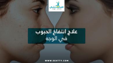 علاج انتفاخ الحبوب في الوجه