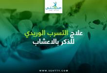 علاج التسرب الوريدي للذكر بالاعشاب