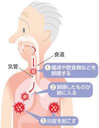 誤嚥性肺炎