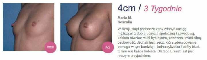 breastfast-op2