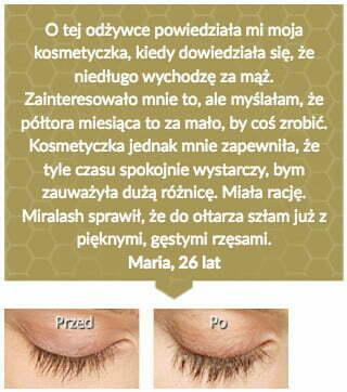 miralash-op8