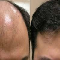 Zioła, które zapobiegają wypadaniu włosów
