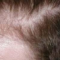 Naturalne środki na wypadające włosy