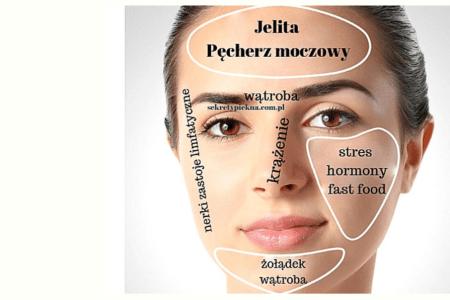 trądzikowa mapa twarzy