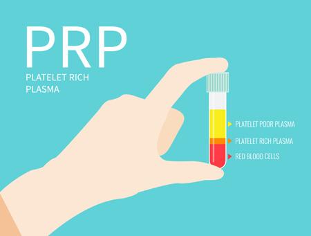 PRP療法のイメージ図