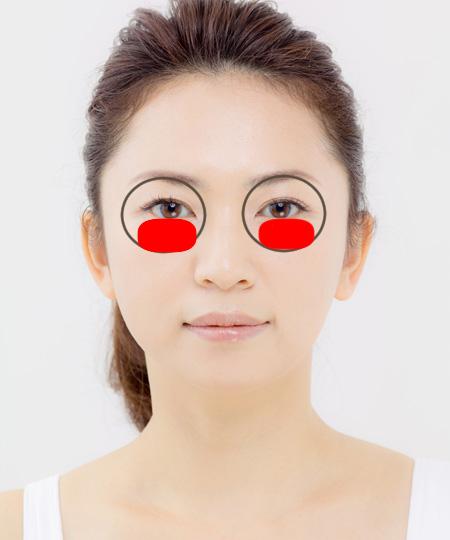 目の下のたるみの説明b画像