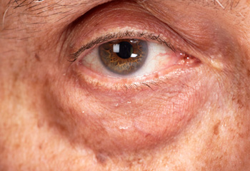 重度の目の下のタルミの画像