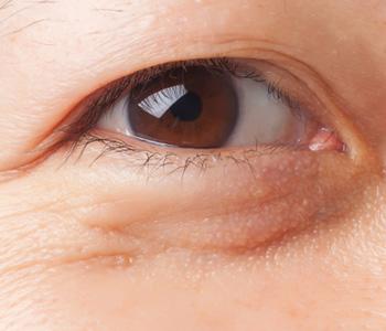 目の下のたるみの例の画像