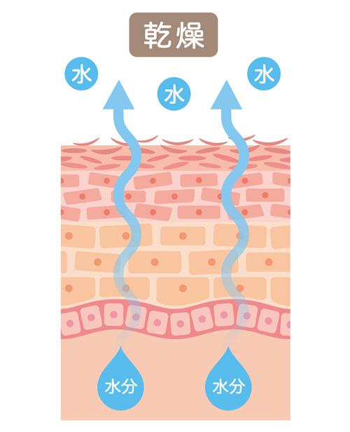 乾燥している肌のイメージ画像