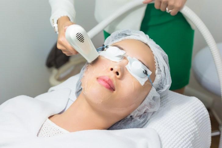 顔のたるみのレーザー治療を受ける女性の画像