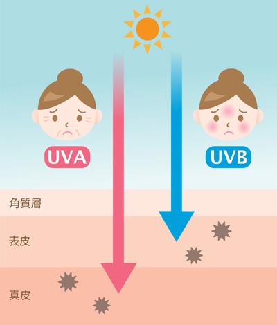 紫外線が原因の目の下のシワの画像