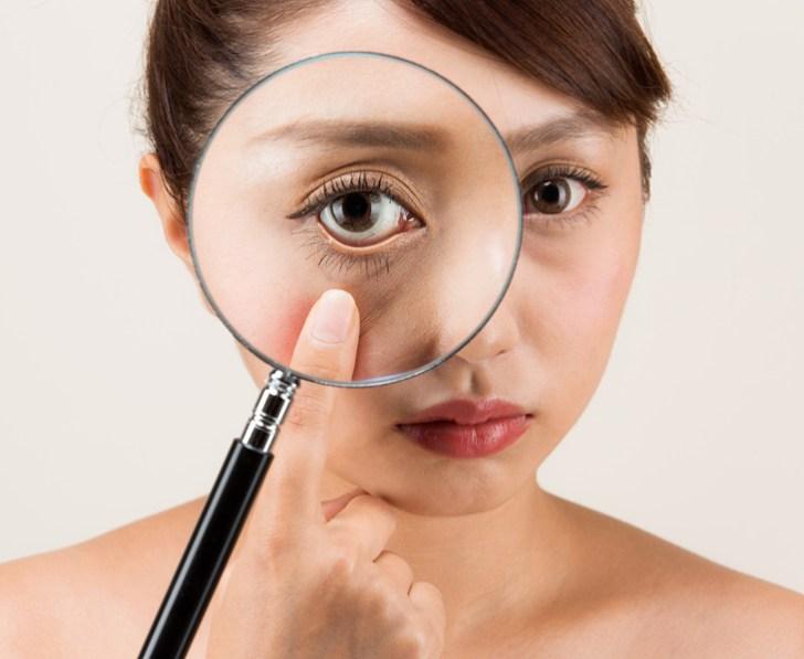 眼窩脂肪を減らすことを頑張る女性の画像