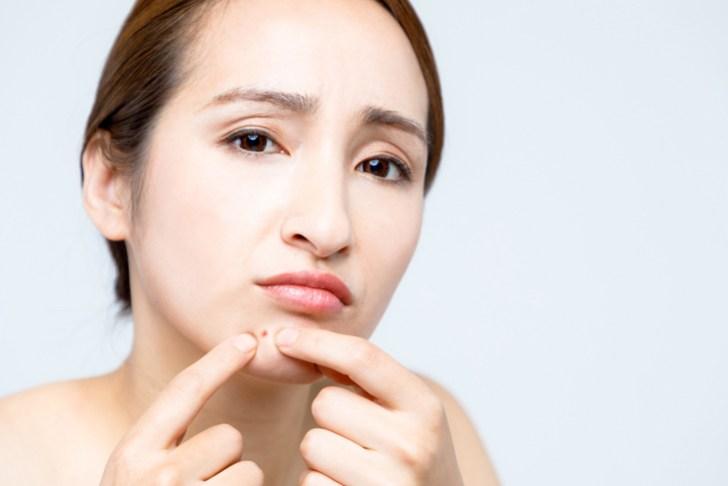 口元に吹き出物ができた女性の画像