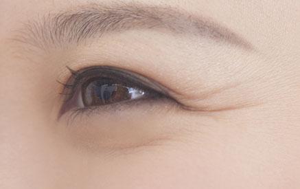 目尻のシワの画像