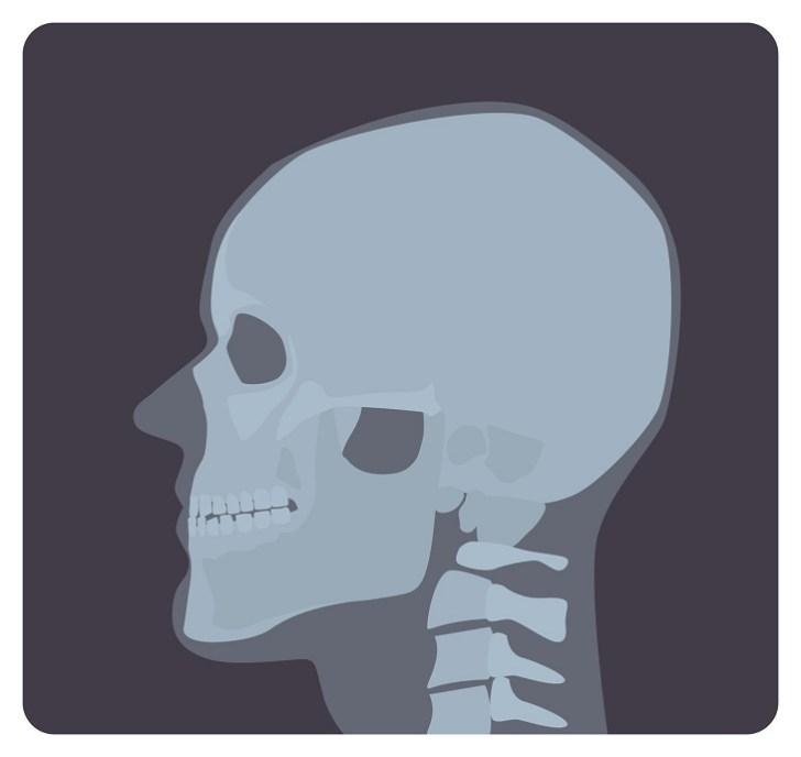 顔の骨格の画像