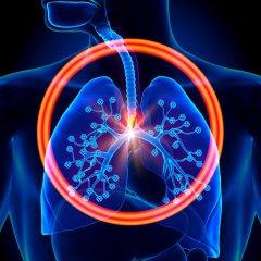 Hypercapnia (Respiratory Acidosis): Causes & Symptoms