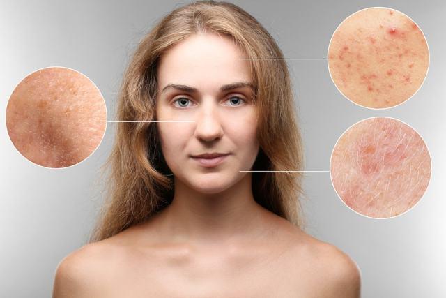 Kefir improves skin health