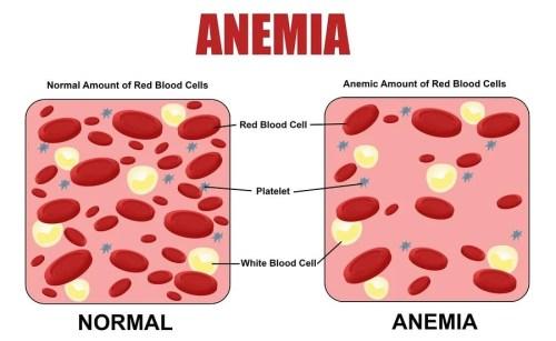 bigstock-anemia-diagram-115481906-min