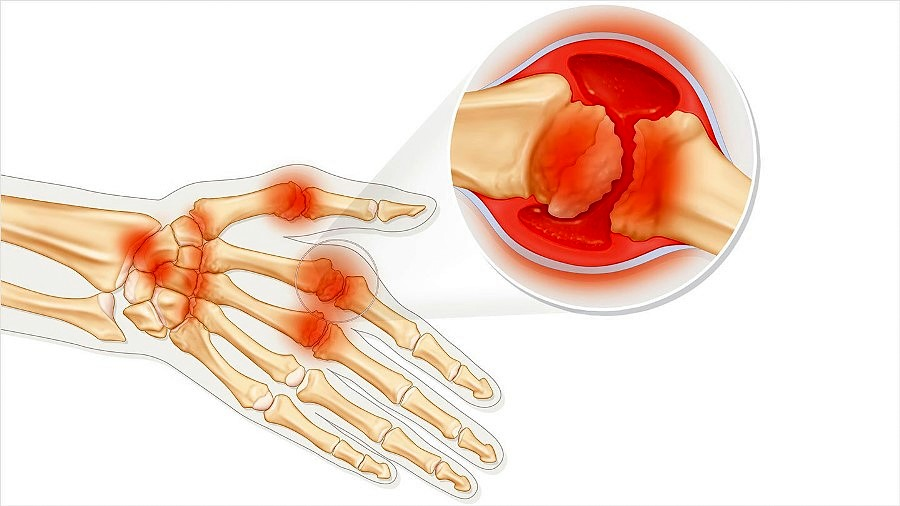 Vitamin D deficiency and rheumatoid arthritis