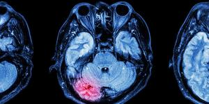 MRI scan of a human brain after concussion