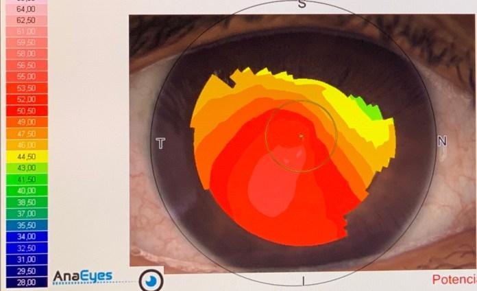 miopía óptica lozano