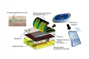 Threads penetrate multiple layers of tissue to sample interstitial fluid and direct it to sensing threads that collect data, such as pH and glucose levels. Conductive threads deliver the data to a flexible wireless transmitter sitting on top of the skin. (Source: Tufts University)