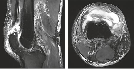 MRI Knie
