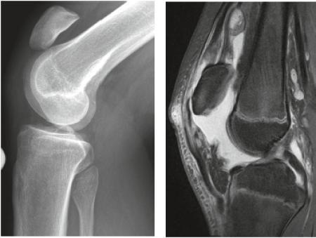 Röntgen Knie