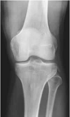 Röntgen Knie ap