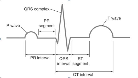 Gambar Rekam Jantung Tidak Normal