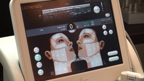 ultherapy-ultrasound
