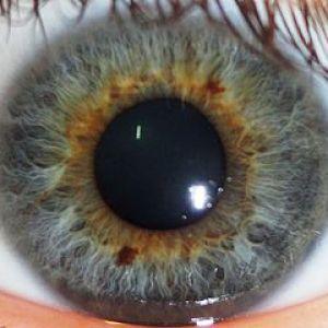iridologie-5
