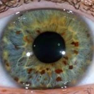 iridologie-6