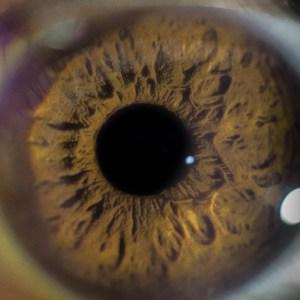 iridologue-gers-toulouse-iridologie