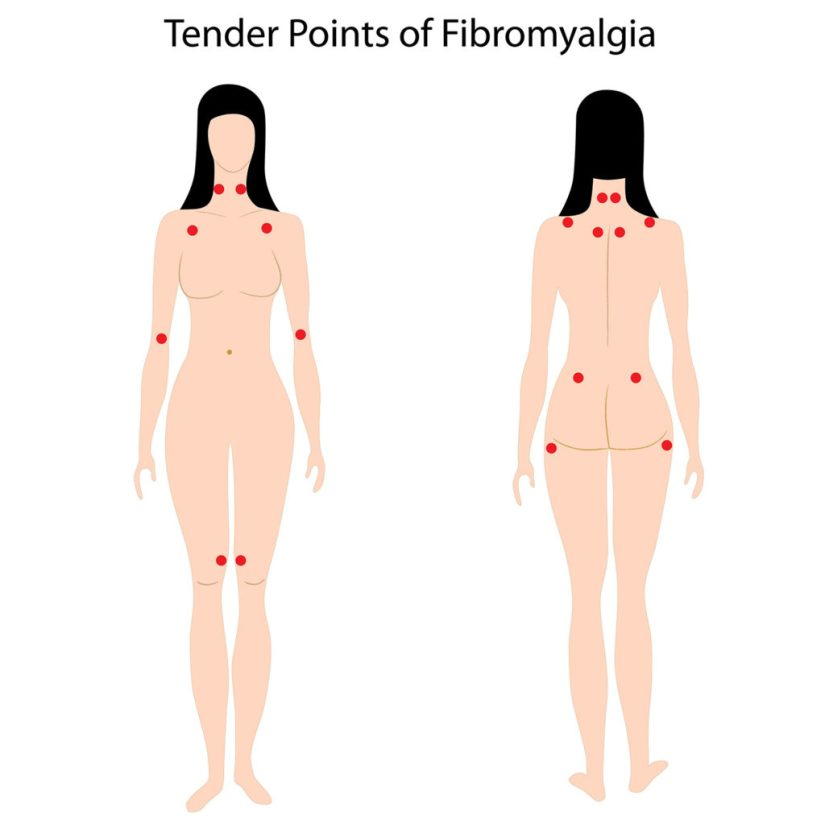 Fybromalgia tender points