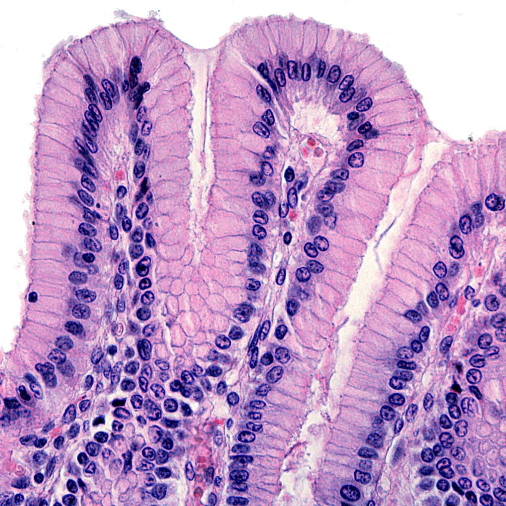 Cannabinoids also promote wound-healing in the epithelium that coats the internal organs