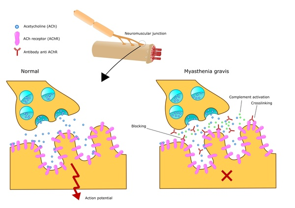 Myasthenia gravis affects the neuromuscular junction (© US National Institute of Health)