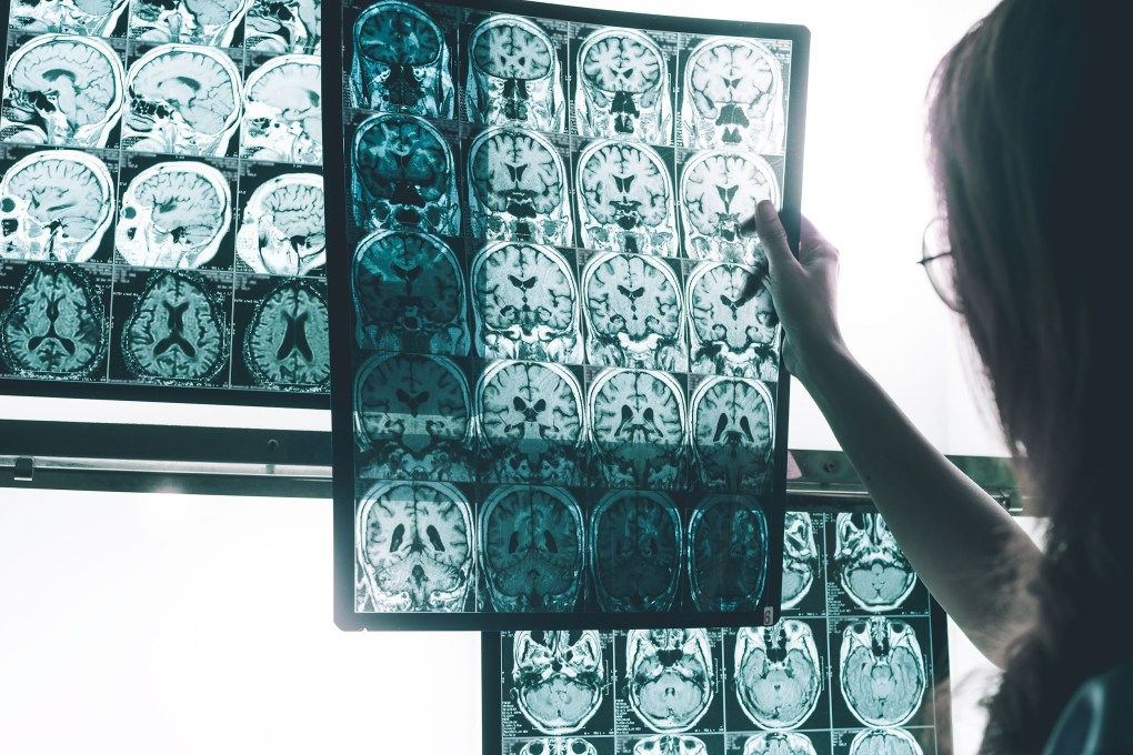 On the right of the image is a doctor. She is holding up ultrasound images showing the cross-section of a brain.