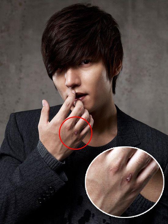 Lee Min-ho hurt on set? – seoulbeats
