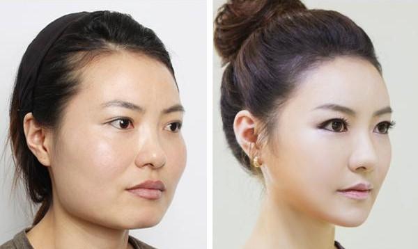 Korean Beauty Surgery